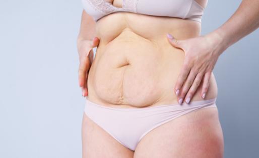 Diástase abdominal: o que é, como identificar e o que fazer