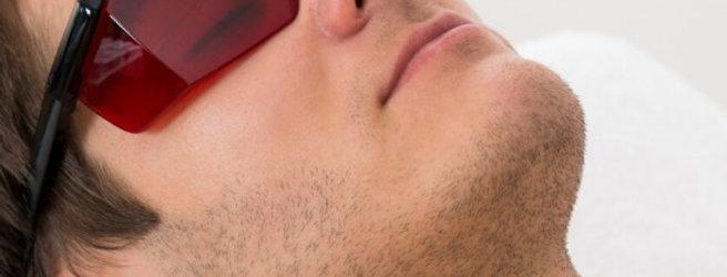 Depilação Definitiva Barba Masculino - 10 Sessões