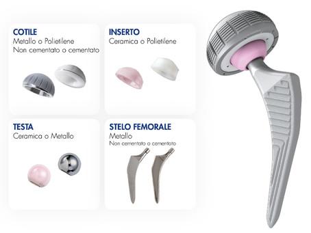 Protesi d'anca, la scelta dell'impianto è più decisiva dell'abilità del chirurgo