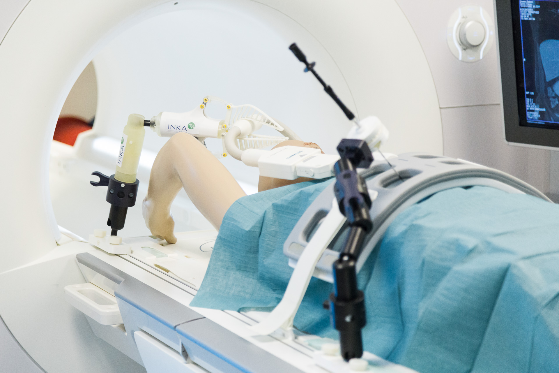 RFA procedure tests inside the MRI lab of STIMULATE