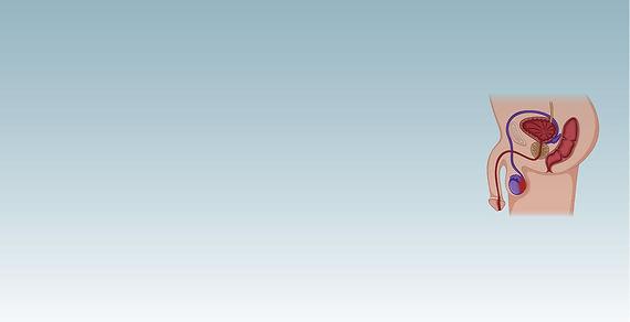 Dolor Testicular_Mesa de trabajo 1.jpg