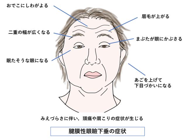 眼瞼下垂の特徴