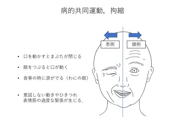 顔面神経麻痺後遺症