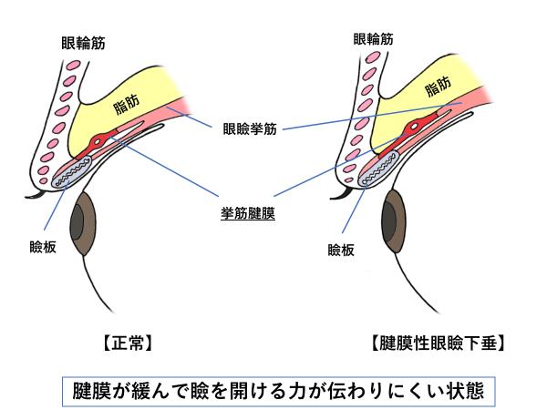 眼瞼の構造