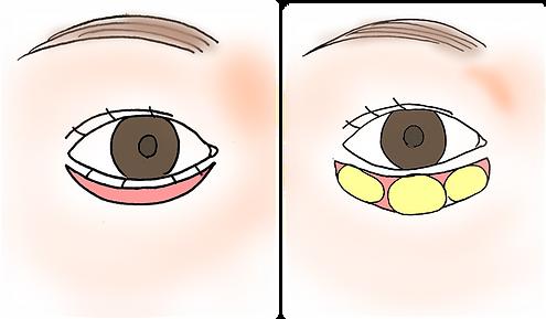 下眼瞼除皺術.png