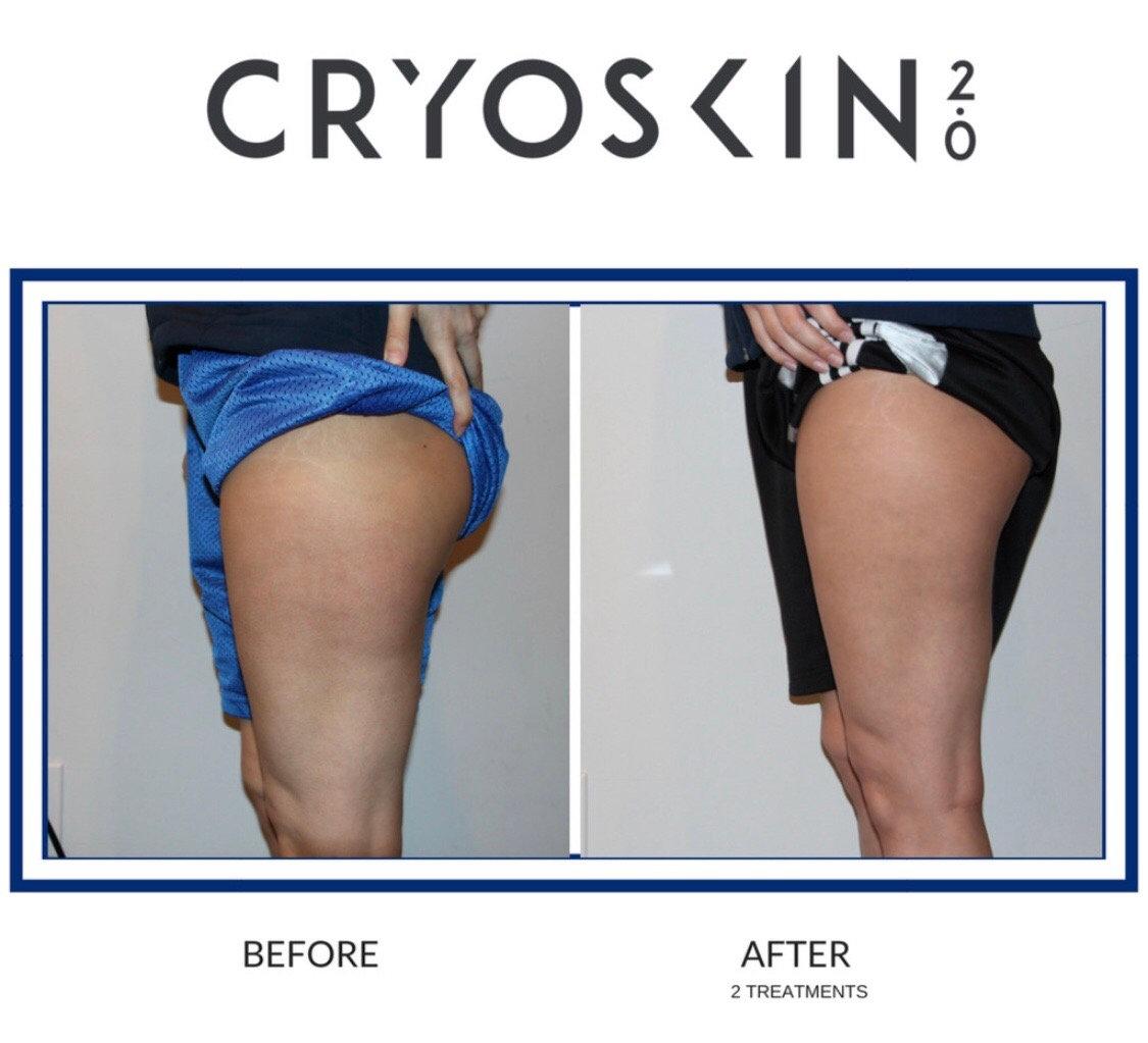 Cryoskin Pain