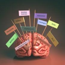 Improving Men's Brain Health