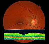 OCT-normal-retina-macula.jpg