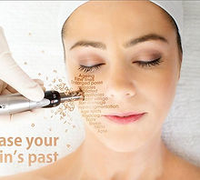 Dermapen_Treatment-Image.jpg