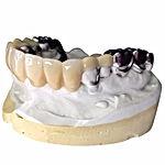 Combination: Chrome Framework and Acrylic Teeth in a cast.