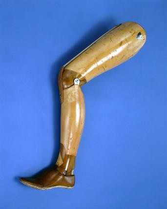 Henry Paget's leg