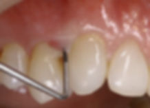 Non-Surgical-Periodontal-Treatment.jpg