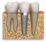 Advanced Implant Maintenance with Air Flow Dental Hygiene Plymouth