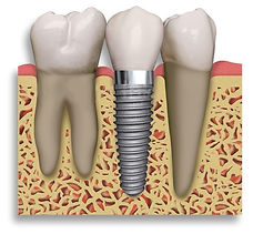 Advanced-Implant-Maintenance-with-Air-Fl