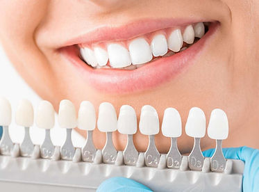 teeth whitening in hay-on-wye, hereford