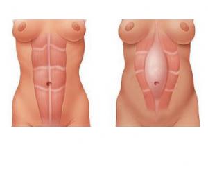 diastasis.png
