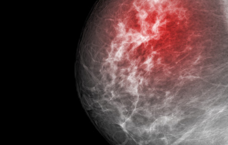 MAMMOGRAMS DON'T SAVE LIVES