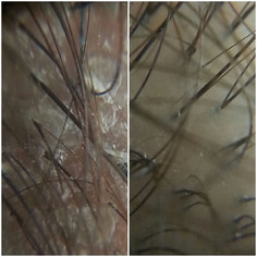 scalp detox