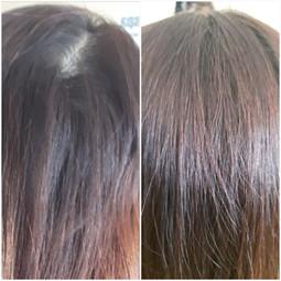 Hair root treatment