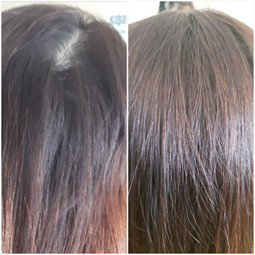 Hair root treatment