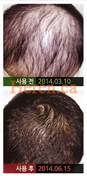 head spa for hair growth