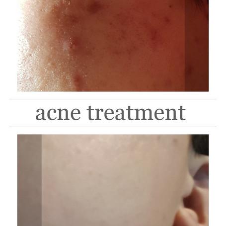 Acne skin care Toronto