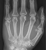 MVP Therapy - Conditions - Arthritis