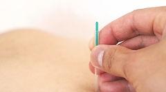 針灸師整体師募集求人|武雄