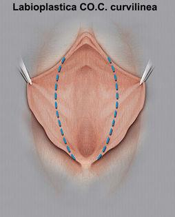 Labioplastica CO.C. curvilinea