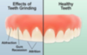 Effects of teeth grinding - The Teeth Pe
