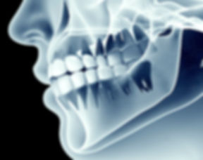 Dental x rays showing teeth and jaw