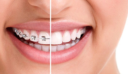 braces for teeth showing before and afte