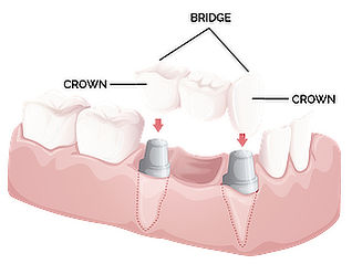 diagram showing  a set of dental crowns
