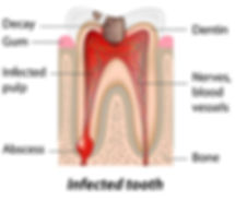Diagram of infected abscessed tooth