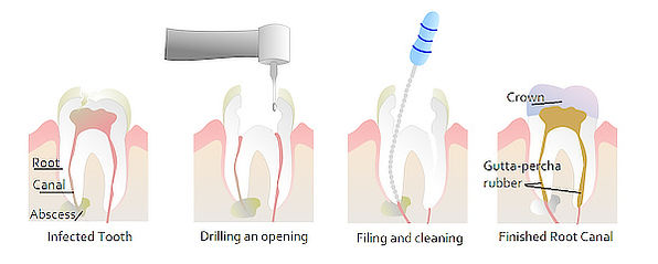 root-canal-therapy.jpg