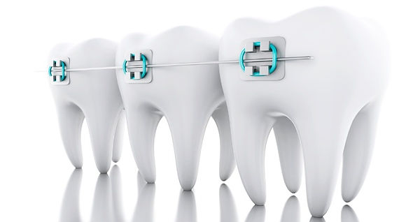 Dental braces orthodontic care services