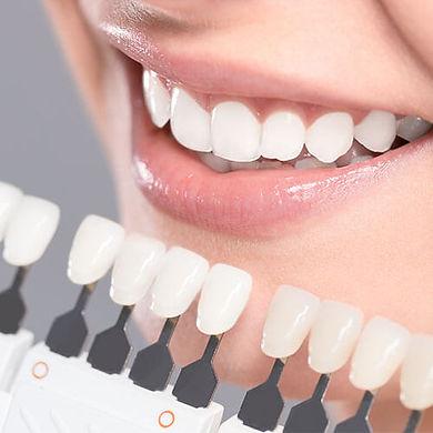 white teeth with veneers - The Teeth People - Rockford IL