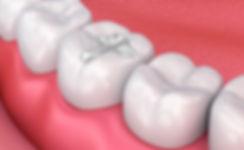 white composite dental filling