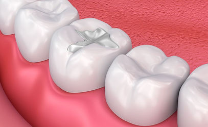white composite dental filling