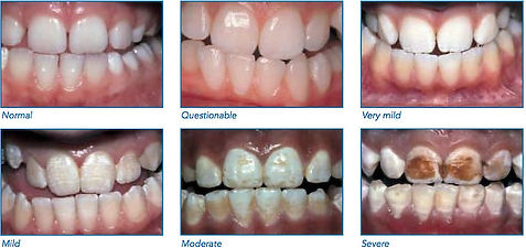 stages of fluorosis