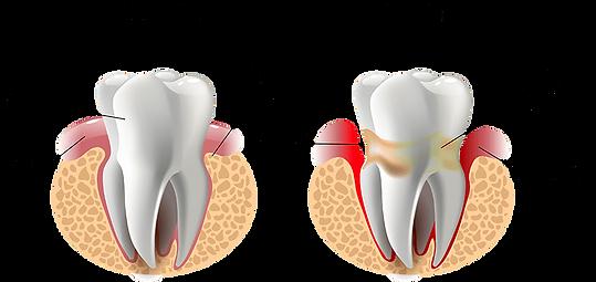 gum disease diagram - the teeth people