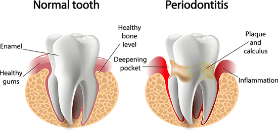 Normal heathy tooth and tooth with peridontitis