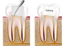 Zahnarztpraxis Berlin Willberg - Endodontie, Wurzelkanal, Wurzelkanalbehandlung, Karies