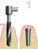 Zahnarztpraxis Berlin Willberg - Implantologie, Implantate, Zahnkrone, Zahnersatz