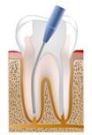 Zahnarztpraxis Berlin Willberg - Endodontie, Wurzelkanal, Wurzelkanalbehandlung, Reinigung