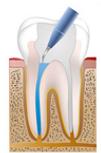 Zahnarztpraxis Berlin Willberg - Endodontie, Wurzelkanal, Wurzelkanalbehandlung, Spülen, Spülung