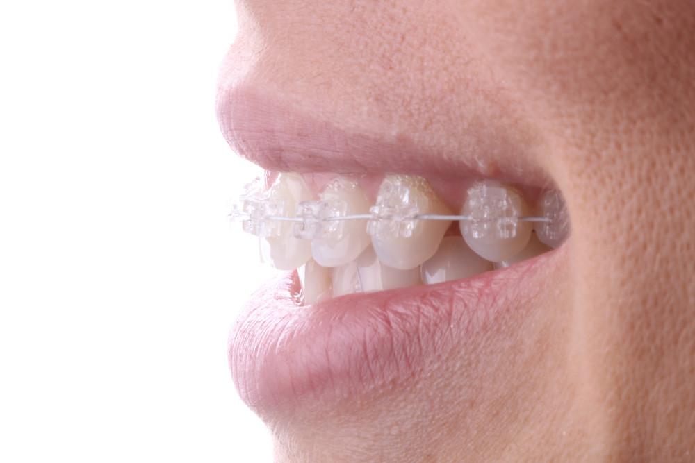 Ortodontia Inteligente com aparelhos new.Evolution