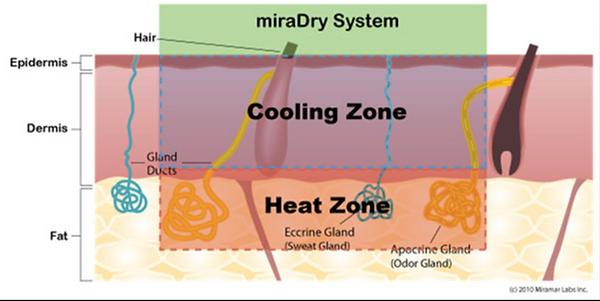 Mira Dry Schweißdrüsenentfernung Behandlung
