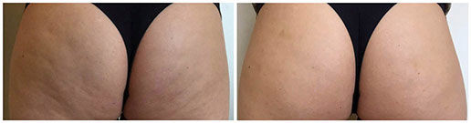 Alidya Anti-Cellulite Behandlung Po