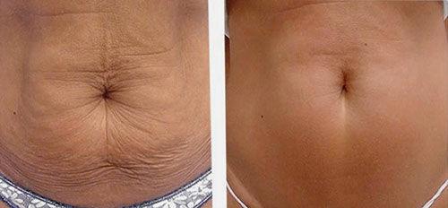 Alidya Anti-Cellulite Behandlung Bauch